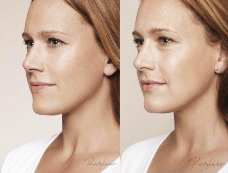 1. Zabieg Restylane Skinboosters - efekt PO i PRZED